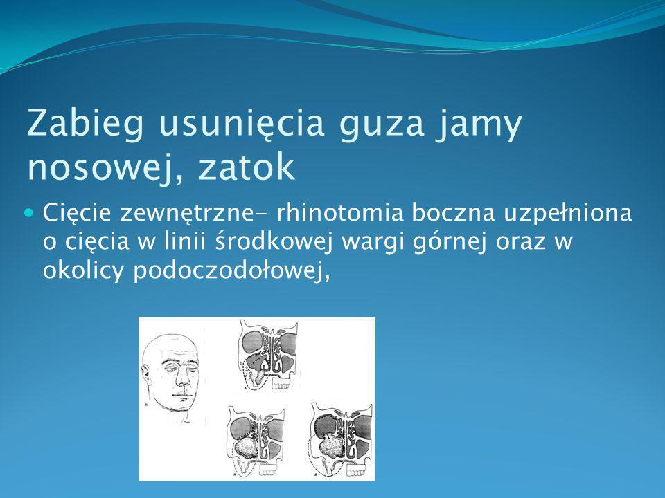 Zabieg usunięcia guza jamy nosowej, zatok w zależności od lokalizacji oraz stopnia zaawansowania zmian resekcja dotyczyć może zatoki szczękowej - jej ściany przyśrodkowej, podniebienia twardego z wyrostkiem zębodołowym, sitowia, dolnej ściany oczodołu, zawartości oczodołu