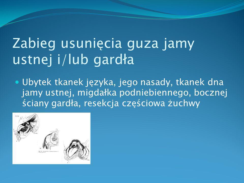 Zabieg usunięcia guza jamy ustnej i/lub gardła zamknięcie powstałego ubytku tkankowego płatem uszypułowanym skórno – mięśniowym np.