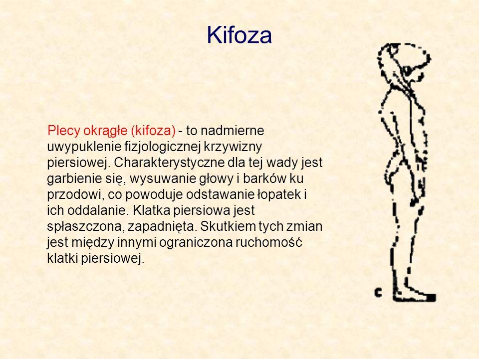 Kifoza Plecy okrągłe (kifoza) - to nadmierne uwypuklenie fizjologicznej krzywizny piersiowej. Charakterystyczne dla tej wady jest garbienie się, wysuw