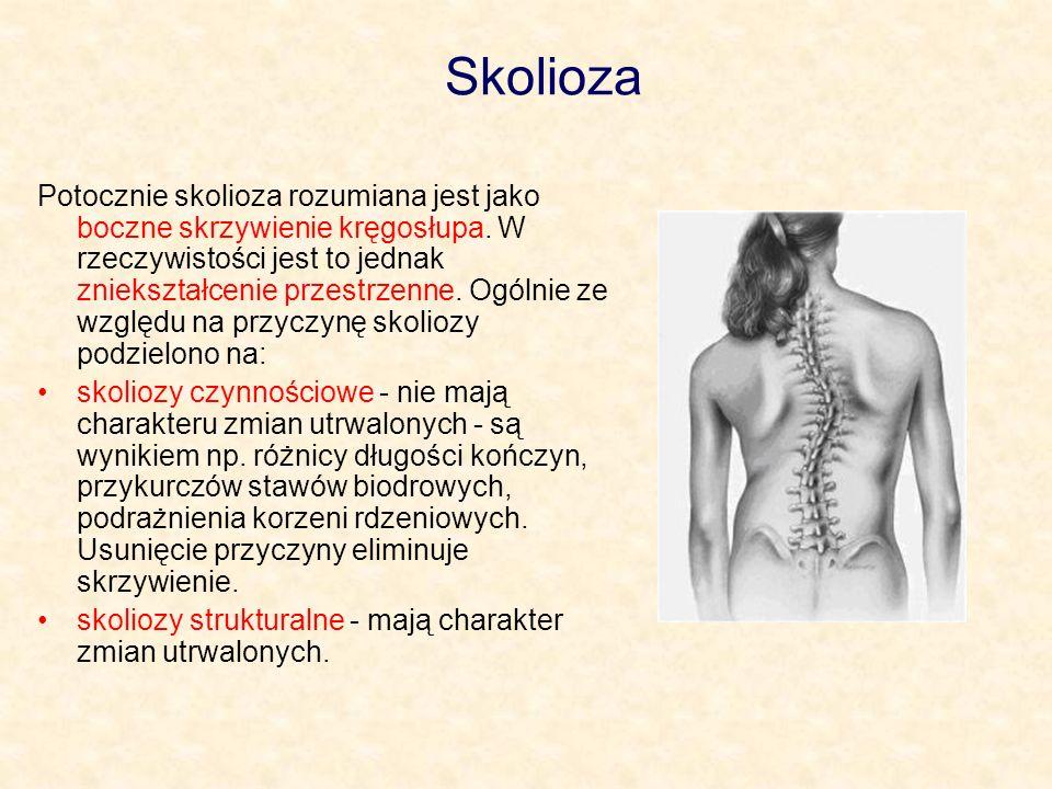 Skolioza Potocznie skolioza rozumiana jest jako boczne skrzywienie kręgosłupa. W rzeczywistości jest to jednak zniekształcenie przestrzenne. Ogólnie z