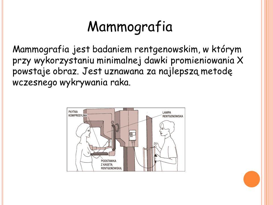 Mammografia Mammografia jest badaniem rentgenowskim, w którym przy wykorzystaniu minimalnej dawki promieniowania X powstaje obraz.