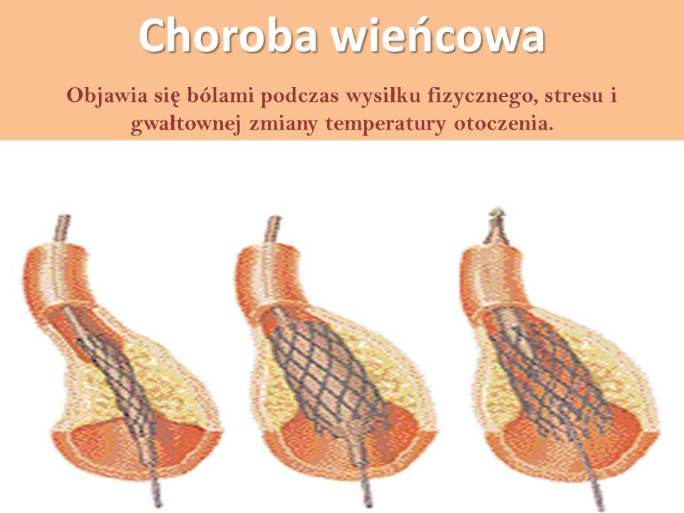Choroba wieńcowa Objawia si ę bólami podczas wysi ł ku fizycznego, stresu i gwa ł townej zmiany temperatury otoczenia.