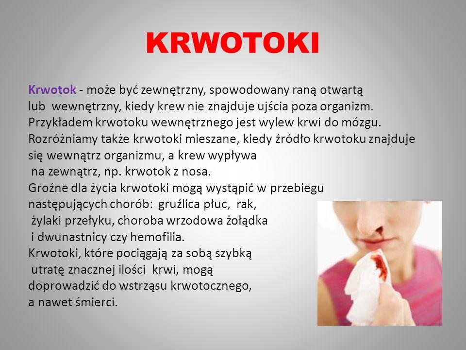 KRWOTOKI Krwotok - może być zewnętrzny, spowodowany raną otwartą lub wewnętrzny, kiedy krew nie znajduje ujścia poza organizm. Przykładem krwotoku wew
