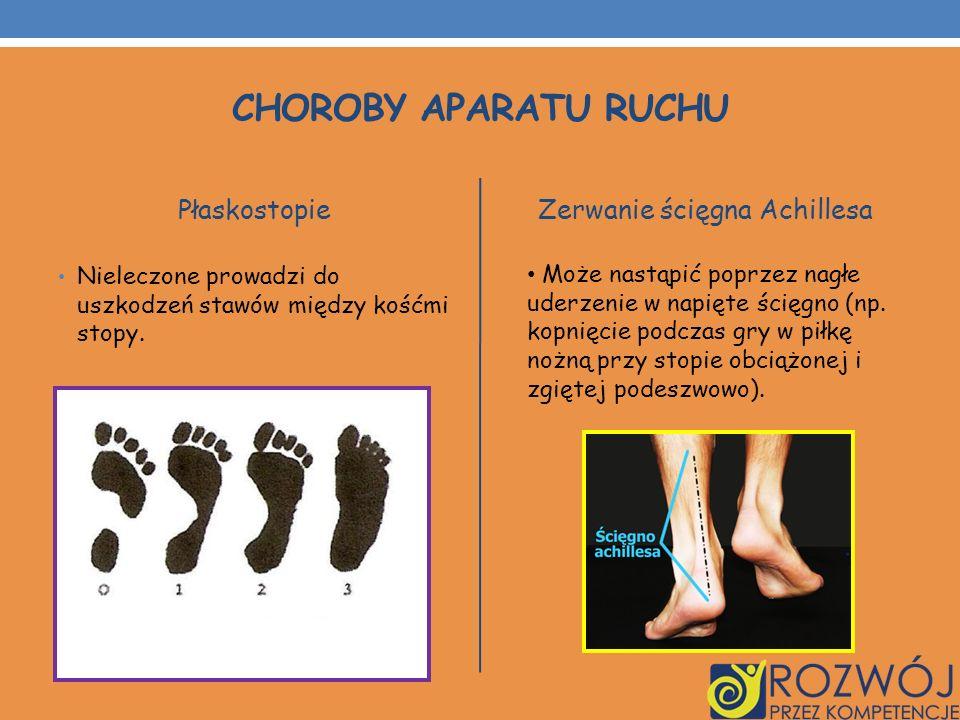 Płaskostopie Nieleczone prowadzi do uszkodzeń stawów między kośćmi stopy. Zerwanie ścięgna Achillesa Może nastąpić poprzez nagłe uderzenie w napięte ś