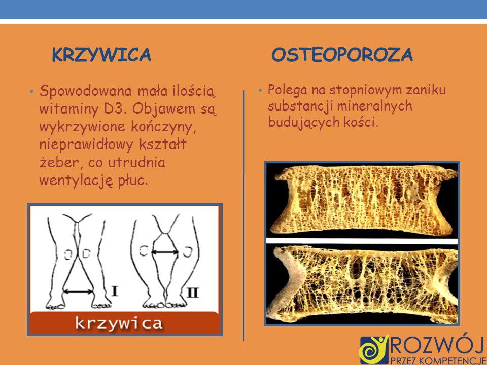 KRZYWICA OSTEOPOROZA Spowodowana mała ilością witaminy D3. Objawem są wykrzywione kończyny, nieprawidłowy kształt żeber, co utrudnia wentylację płuc.