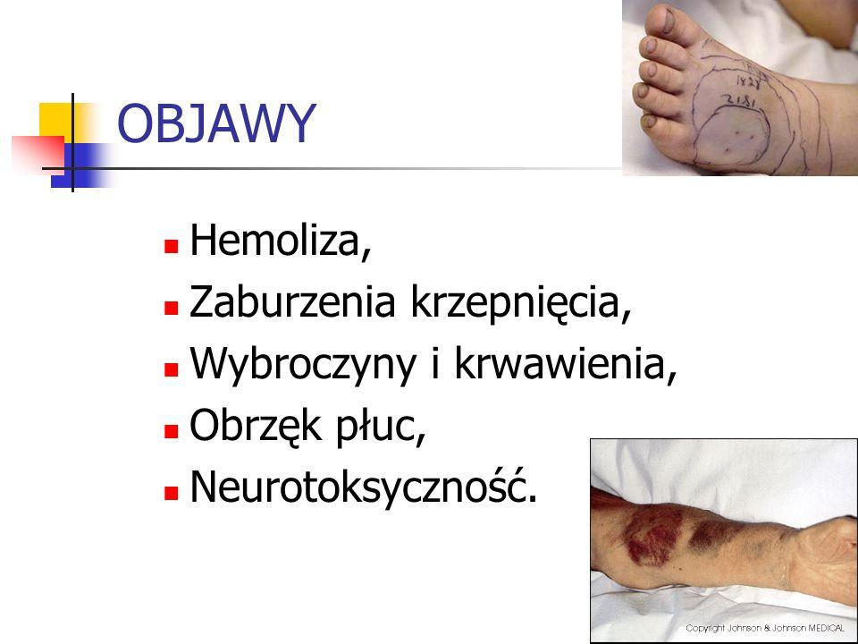 OBJAWY Hemoliza, Zaburzenia krzepnięcia, Wybroczyny i krwawienia, Obrzęk płuc, Neurotoksyczność.