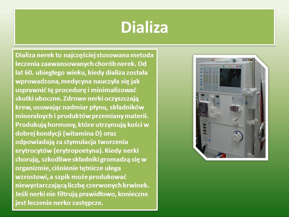 Dializa Dializa nerek to najczęściej stosowana metoda leczenia zaawansowanych chorób nerek.
