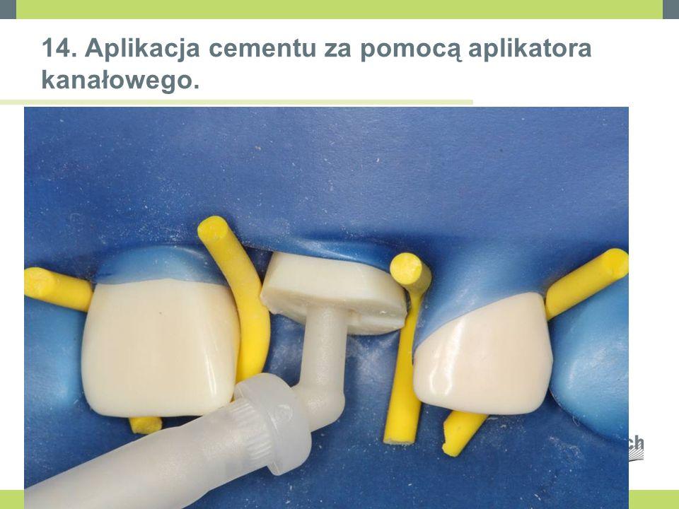 14. Aplikacja cementu za pomocą aplikatora kanałowego.