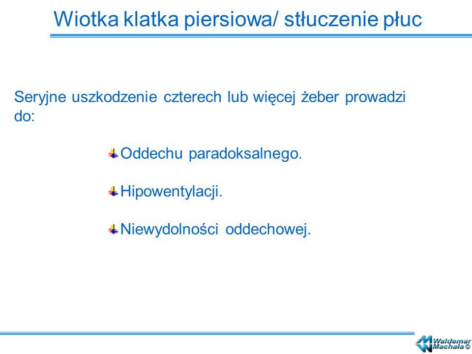 Wiotka klatka piersiowa/ stłuczenie płuc Seryjne uszkodzenie czterech lub więcej żeber prowadzi do: Oddechu paradoksalnego. Hipowentylacji. Niewydolno