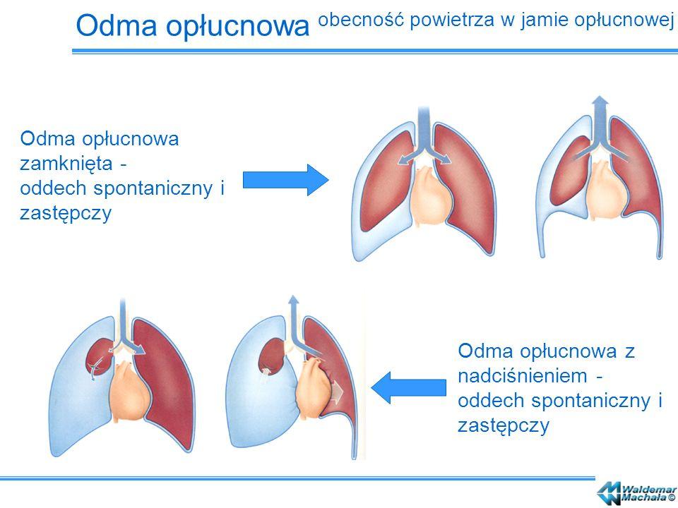Odma opłucnowa zamknięta - oddech spontaniczny i zastępczy Odma opłucnowa z nadciśnieniem - oddech spontaniczny i zastępczy Odma opłucnowa obecność po