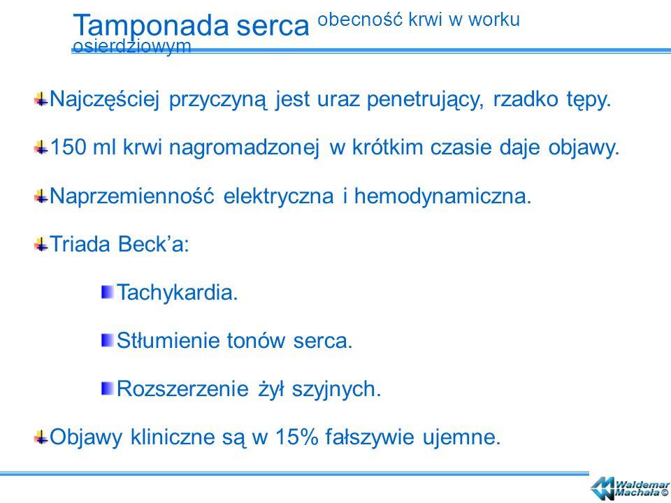Konieczne wykonanie echokardiogramu.Leczenie: Perikardiopunkcja: Metodą Rehna.