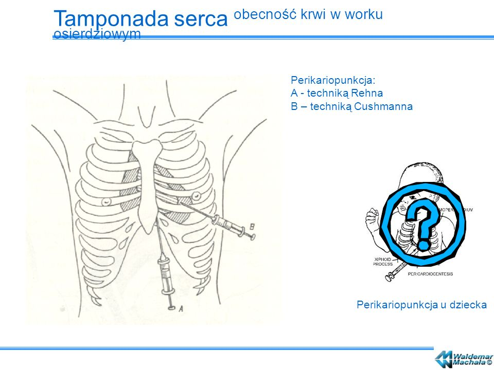 Perikariopunkcja: A - techniką Rehna B – techniką Cushmanna Perikariopunkcja u dziecka Tamponada serca obecność krwi w worku osierdziowym