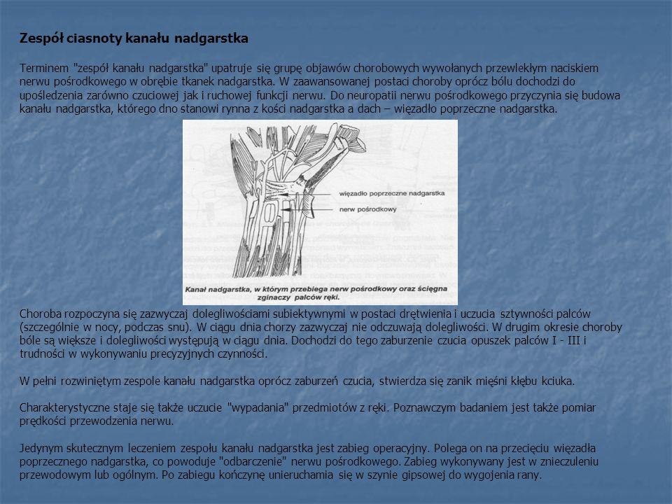 Zespół ciasnoty kanału nadgarstka Terminem