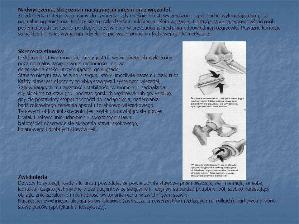 Nadwyrężenia, skręcenia i naciągnięcia mięśni oraz więzadeł. Ze zdarzeniami tego typu mamy do czynienia, gdy mięśnie lub stawy zmuszone są do ruchu wy