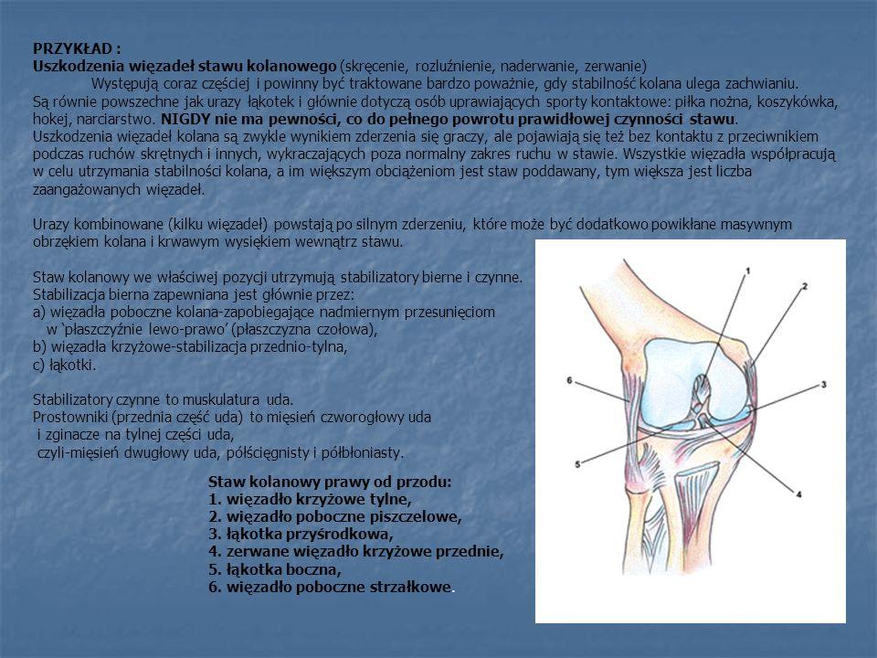 PRZYKŁAD : Uszkodzenia więzadeł stawu kolanowego (skręcenie, rozluźnienie, naderwanie, zerwanie) Występują coraz częściej i powinny być traktowane bar