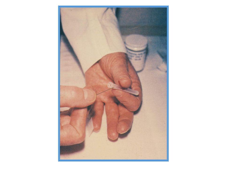 Ryzyko transmisji wirusów po zakłuciu zakażoną igłą (1) HBV 10-30% HCV 4% HIV 0,3%