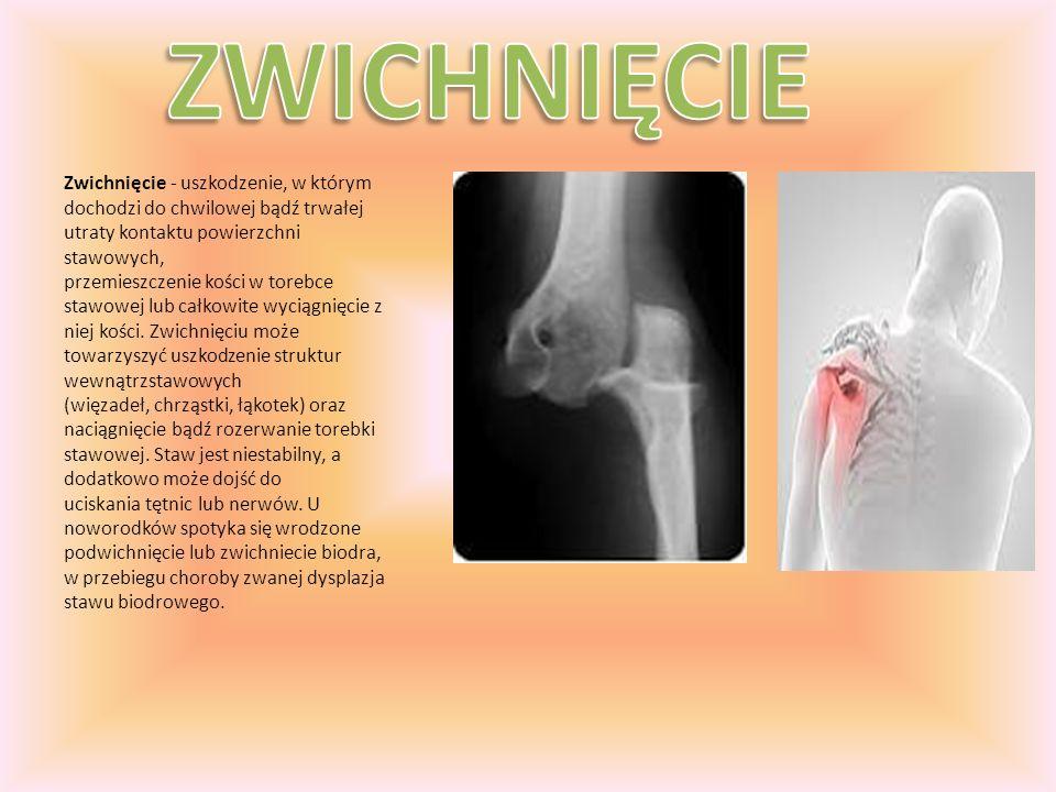 Złamanie – całkowite przerwanie ciągłości kości (gdy dochodzi do przerwania niecałkowitego określa się je jako nadłamanie).