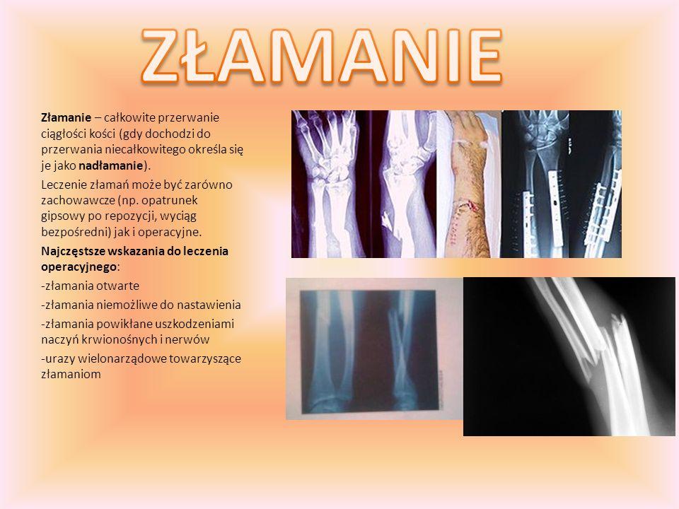 Złamanie – całkowite przerwanie ciągłości kości (gdy dochodzi do przerwania niecałkowitego określa się je jako nadłamanie). Leczenie złamań może być z
