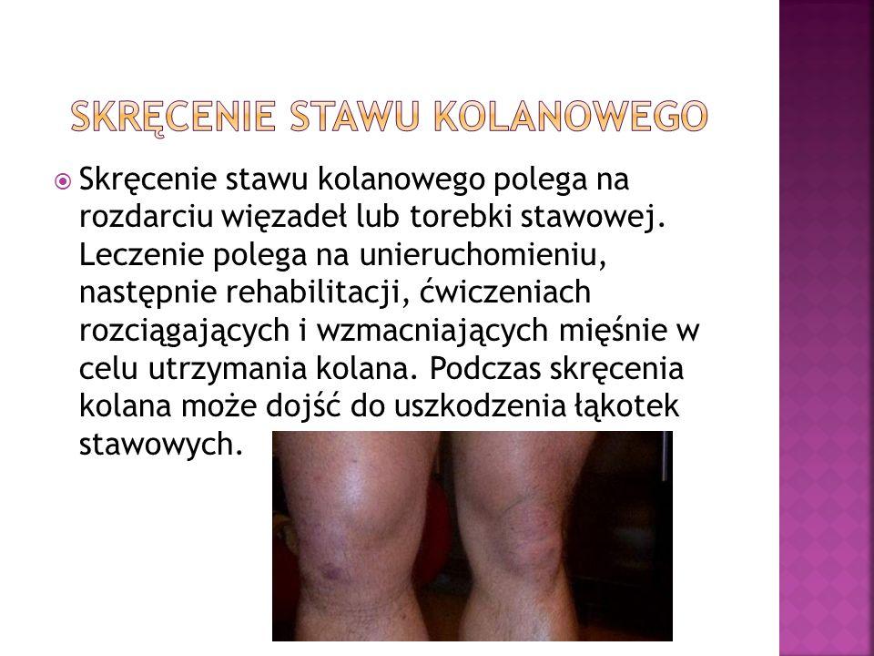 Skręcenie stawu kolanowego polega na rozdarciu więzadeł lub torebki stawowej. Leczenie polega na unieruchomieniu, następnie rehabilitacji, ćwiczeniach
