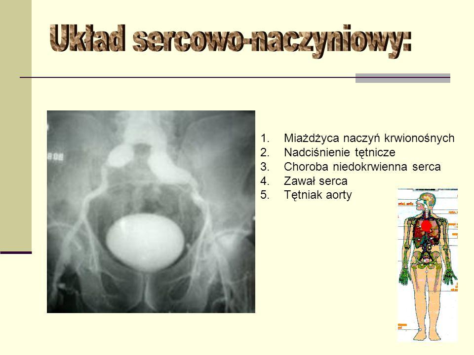 1.Miażdżyca naczyń krwionośnych 2.Nadciśnienie tętnicze 3.Choroba niedokrwienna serca 4.Zawał serca 5.Tętniak aorty