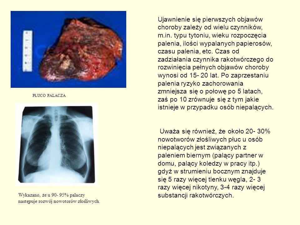 PŁUCO PALACZA Wykazano, że u 90- 95% palaczy następuje rozwój nowotorów złośliwych. Ujawnienie się pierwszych objawów choroby zależy od wielu czynnikó