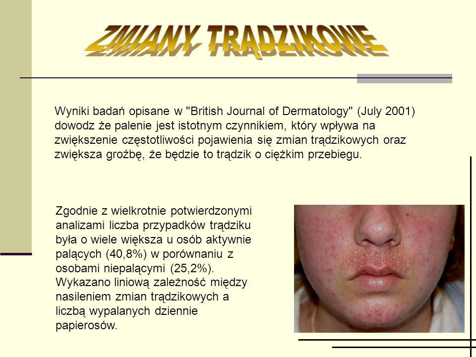 Wyniki badań opisane w British Journal of Dermatology (July 2001) dowodz że palenie jest istotnym czynnikiem, który wpływa na zwiększenie częstotliwości pojawienia się zmian trądzikowych oraz zwiększa groźbę, że będzie to trądzik o ciężkim przebiegu.
