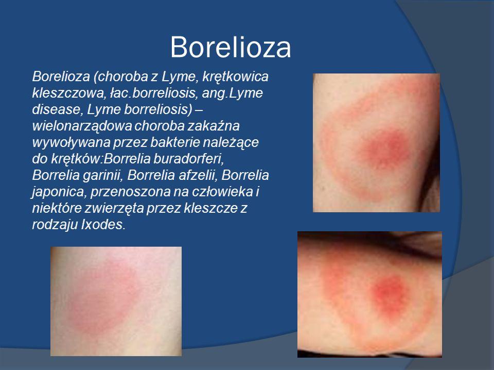 Borelioza Borelioza (choroba z Lyme, krętkowica kleszczowa, łac.borreliosis, ang.Lyme disease, Lyme borreliosis) – wielonarządowa choroba zakaźna wywo