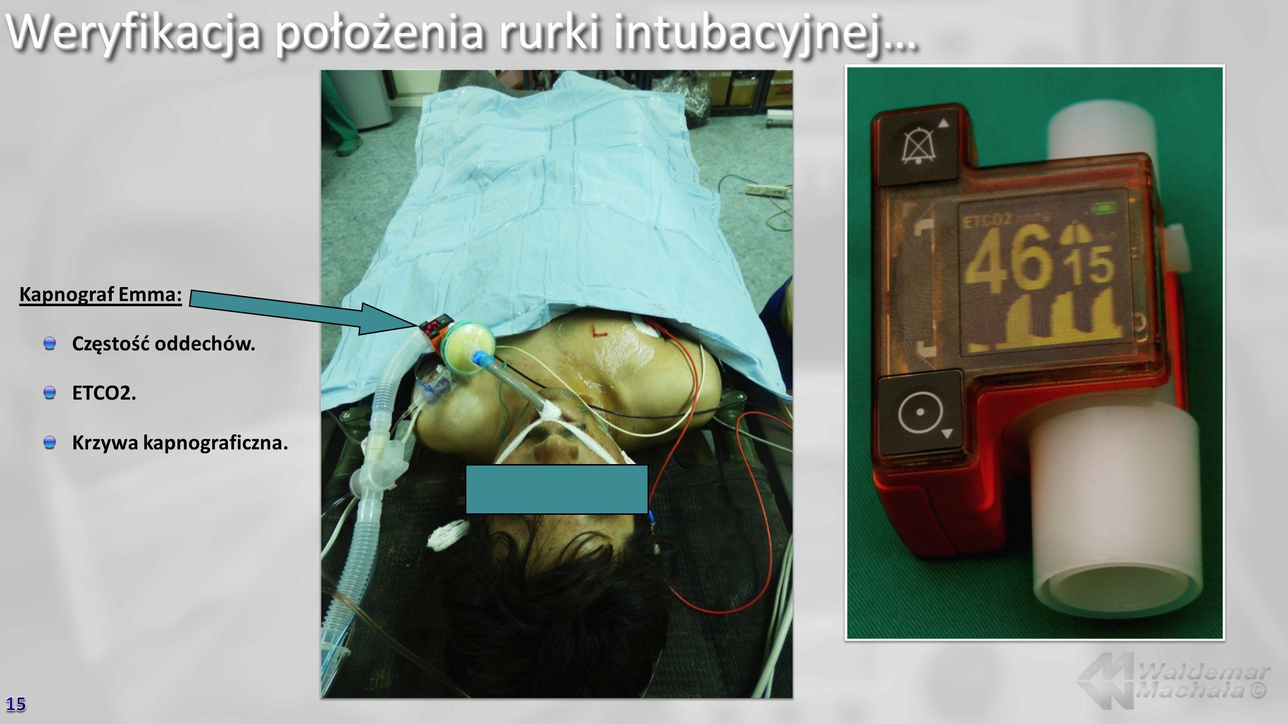 Weryfikacja położenia rurki intubacyjnej… Kapnograf Emma: Częstość oddechów. ETCO2. Krzywa kapnograficzna.