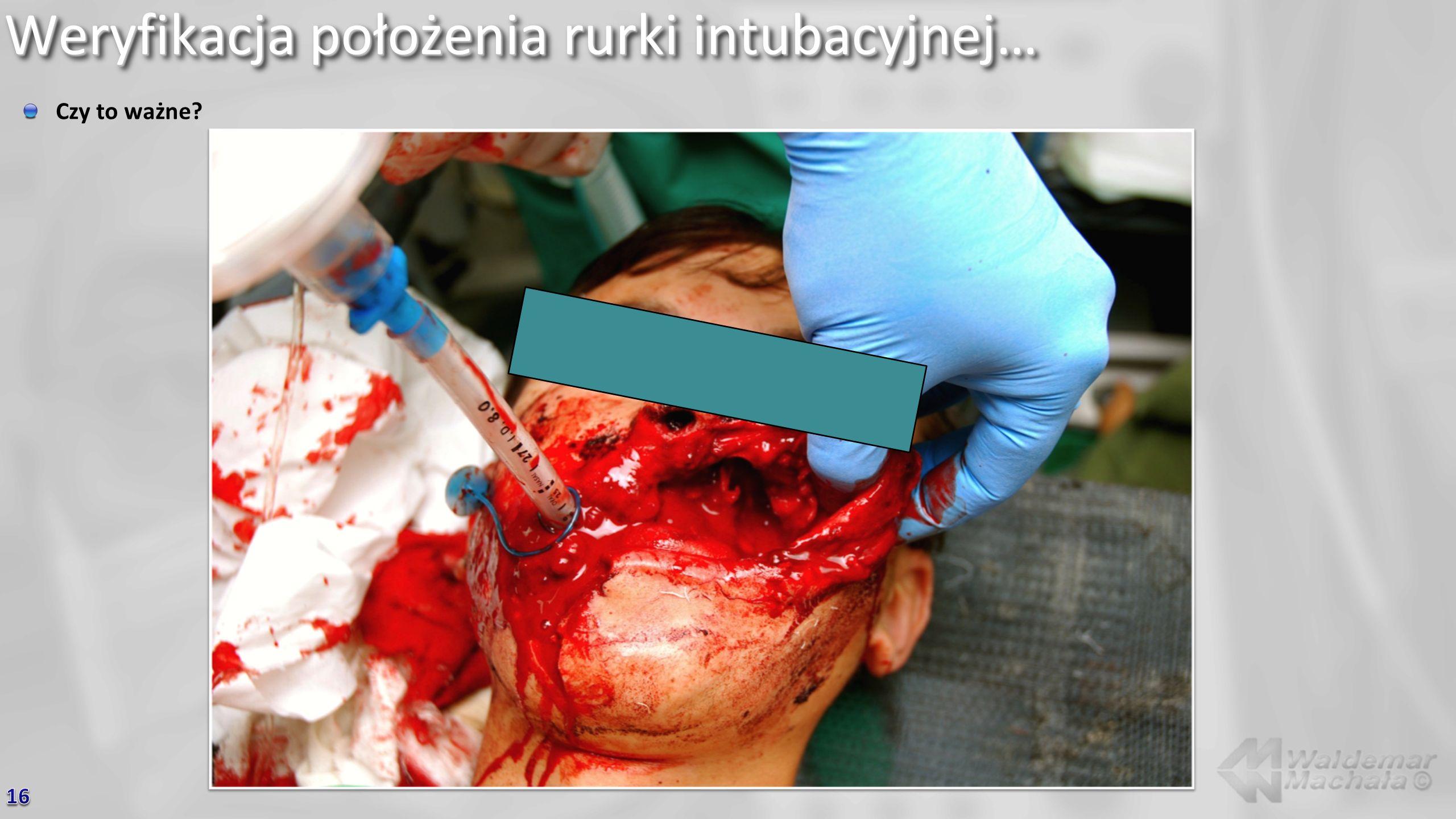 Weryfikacja położenia rurki intubacyjnej… Czy to ważne?