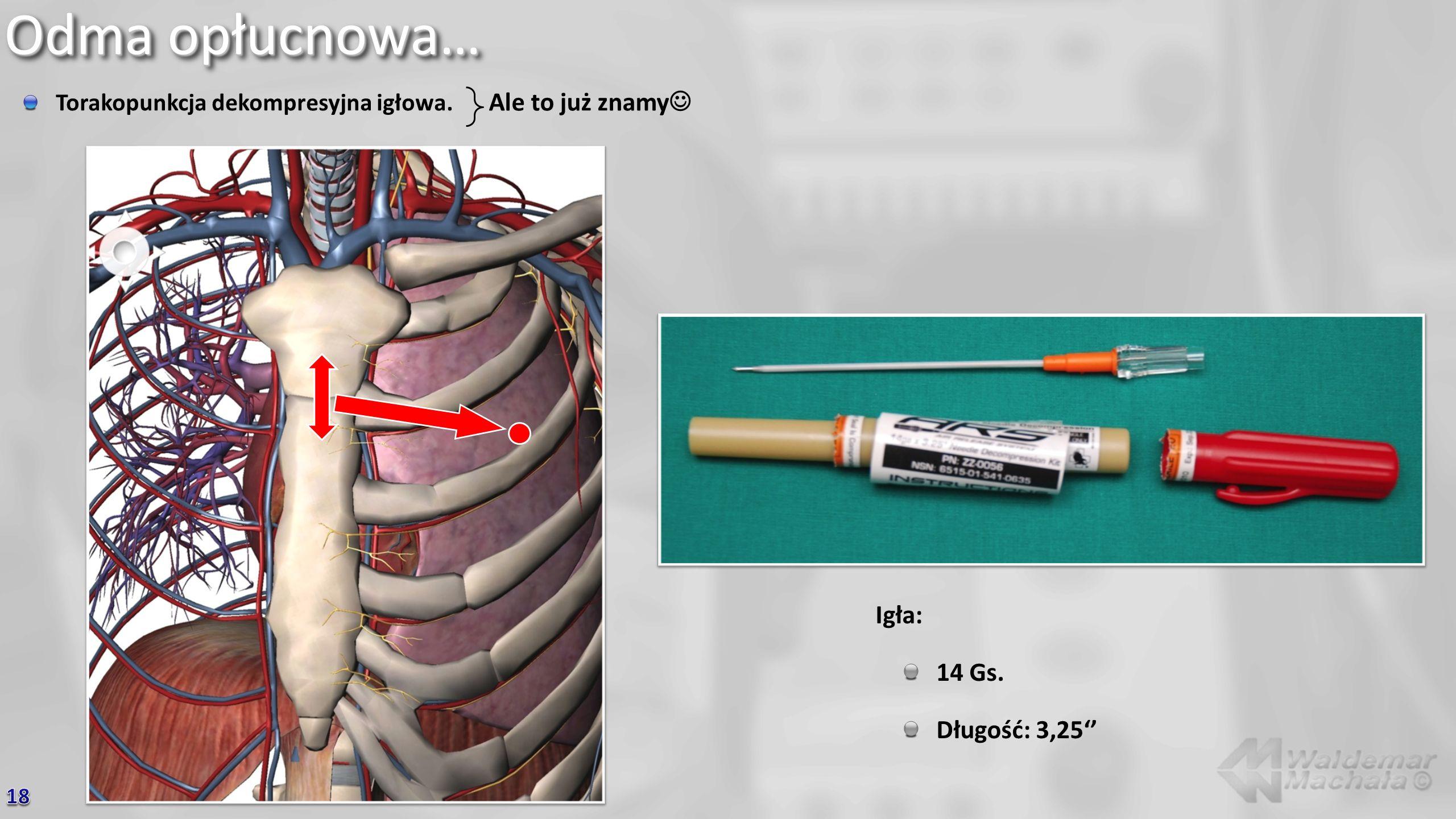 Odma opłucnowa… Torakopunkcja dekompresyjna igłowa. Igła: 14 Gs. Długość: 3,25 Ale to już znamy