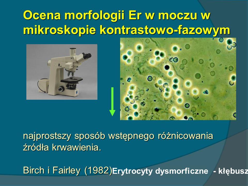 Ocena morfologii Er w moczu w mikroskopie kontrastowo-fazowym najprostszy sposób wstępnego różnicowania źródła krwawienia. Birch i Fairley (1982) Eryt