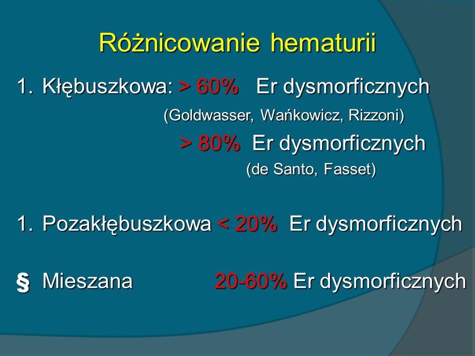 Różnicowanie hematurii 1.Kłębuszkowa: > 60% Er dysmorficznych (Goldwasser, Wańkowicz, Rizzoni) (Goldwasser, Wańkowicz, Rizzoni) > 80% Er dysmorficznyc