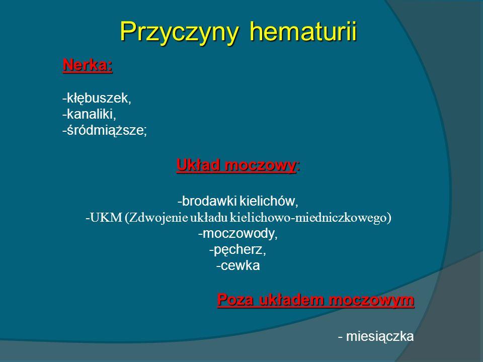 Przyczyny hematurii Nerka: -kłębuszek, -kanaliki, -śródmiąższe; Układ moczowy: -brodawki kielichów, -UKM (Zdwojenie układu kielichowo-miedniczkowego)