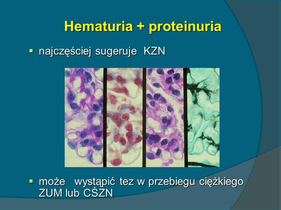 Hematuria + proteinuria najczęściej sugeruje KZN najczęściej sugeruje KZN może wystąpić tez w przebiegu ciężkiego ZUM lub CŚZN może wystąpić tez w prz