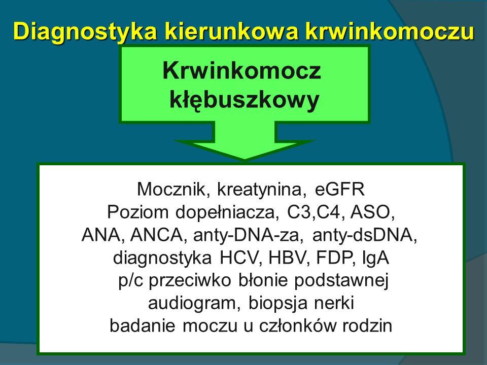 Diagnostyka kierunkowa krwinkomoczu Krwinkomocz kłębuszkowy Mocznik, kreatynina, eGFR Poziom dopełniacza, C3,C4, ASO, ANA, ANCA, anty-DNA-za, anty-dsD