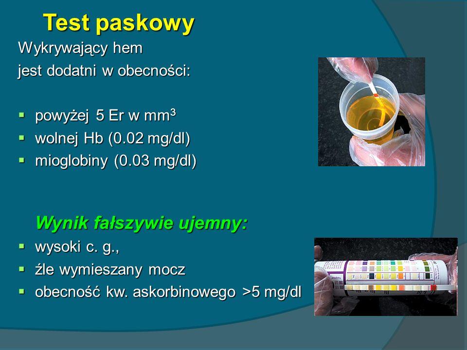 Test paskowy Wykrywający hem jest dodatni w obecności: powyżej 5 Er w mm 3 powyżej 5 Er w mm 3 wolnej Hb (0.02 mg/dl) wolnej Hb (0.02 mg/dl) mioglobin