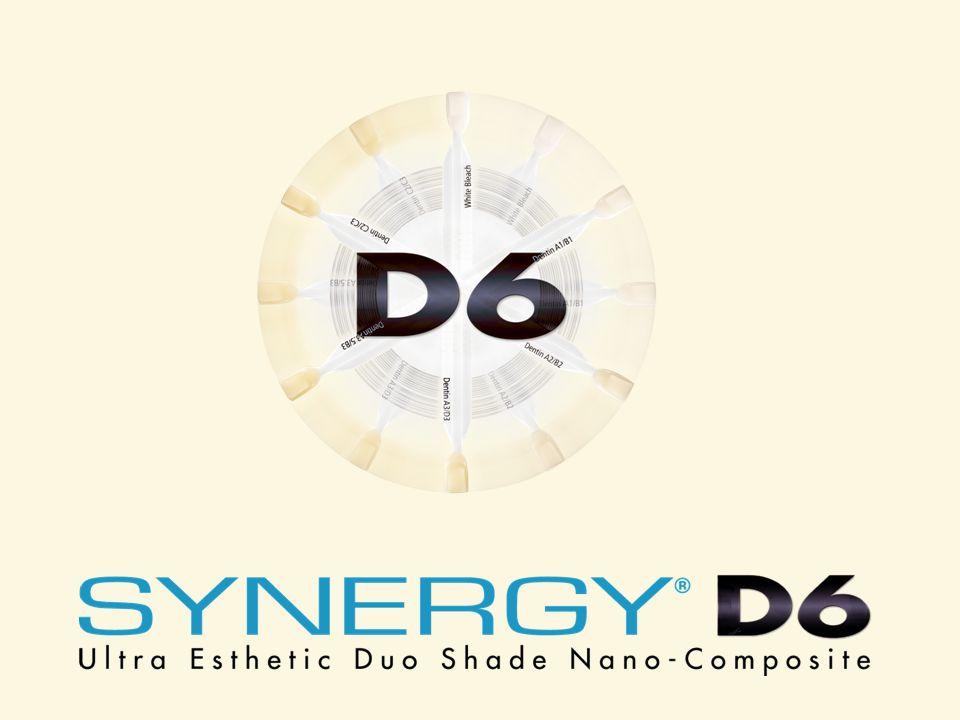 Gwarantowany efekt estetyczny Kolor A2 VitaKolor B2 Vita Odbudowa wykonana tylko Synergy D6 – odcieniem do zębiny A2/B2