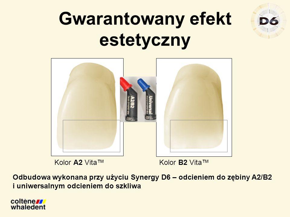 Gwarantowany efekt estetyczny Kolor A2 VitaKolor B2 Vita Odbudowa wykonana przy użyciu Synergy D6 – odcieniem do zębiny A2/B2 i uniwersalnym odcieniem