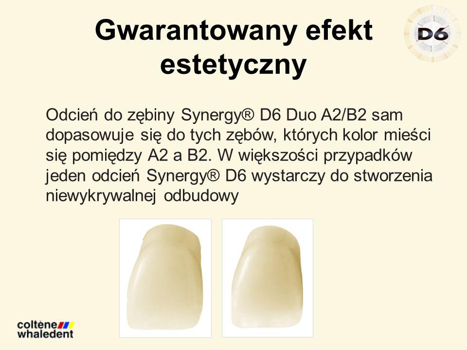 Gwarantowany efekt estetyczny Odcień do zębiny Synergy® D6 Duo A2/B2 sam dopasowuje się do tych zębów, których kolor mieści się pomiędzy A2 a B2. W wi