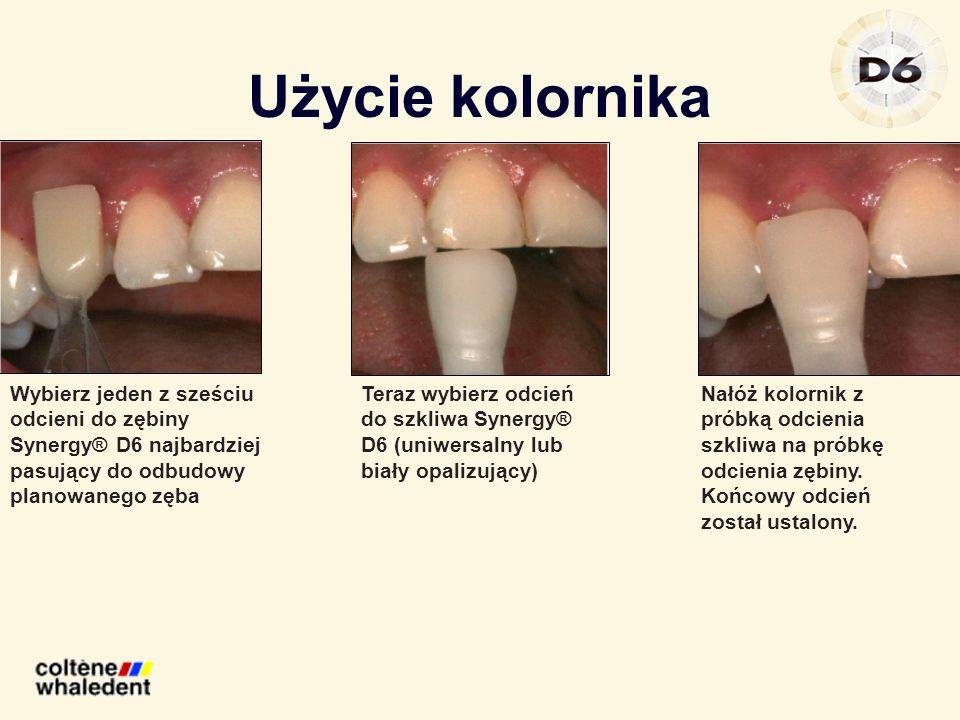 Użycie kolornika Wybierz jeden z sześciu odcieni do zębiny Synergy® D6 najbardziej pasujący do odbudowy planowanego zęba Teraz wybierz odcień do szkli