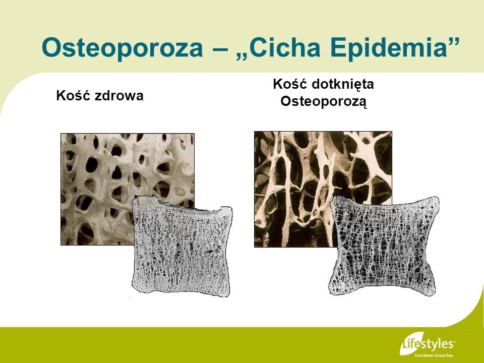 Kość zdrowa Kość dotknięta Osteoporozą