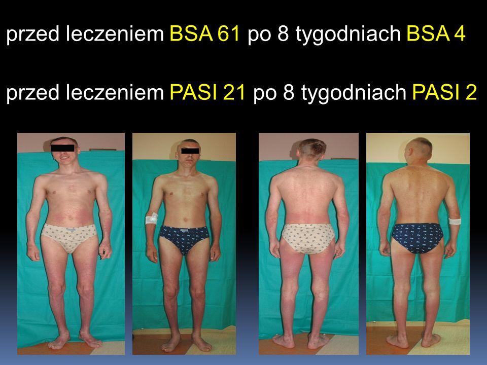 przed leczeniem BSA 61 po 8 tygodniach BSA 4 przed leczeniem PASI 21 po 8 tygodniach PASI 2