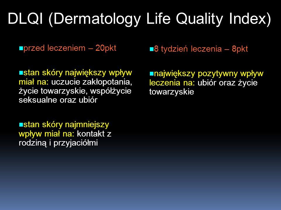 DLQI (Dermatology Life Quality Index) przed leczeniem – 20pkt przed leczeniem – 20pkt stan skóry największy wpływ miał na: uczucie zakłopotania, życie
