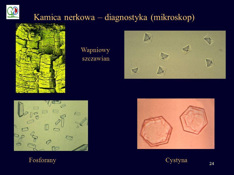 24 Kamica nerkowa – diagnostyka (mikroskop) Wapniowy szczawian CystynaFosforany