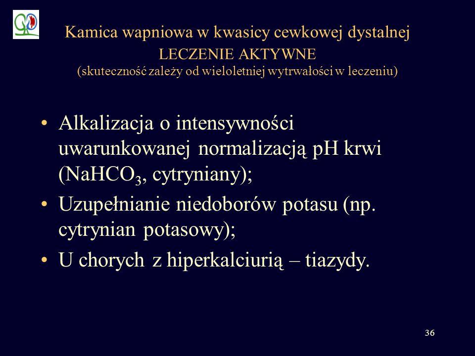 36 Kamica wapniowa w kwasicy cewkowej dystalnej LECZENIE AKTYWNE (skuteczność zależy od wieloletniej wytrwałości w leczeniu) Alkalizacja o intensywnoś