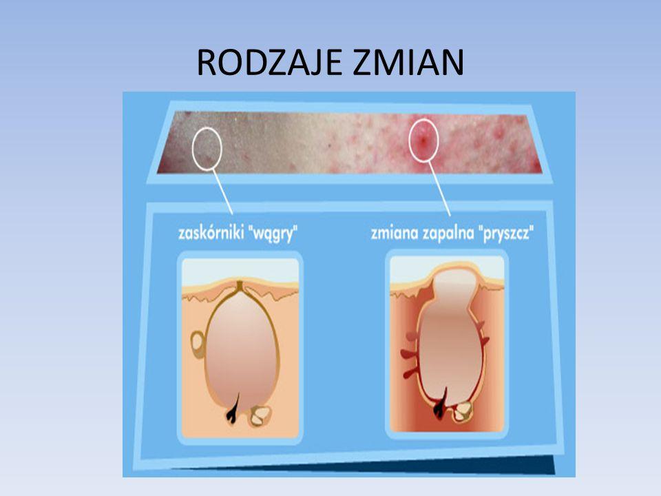 Zaskórniki otwarte – umiejscowione płytko z charakterystycznym czarnym punktem na szczycie Zaskórniki zamknięte – barwa cielista lub biaława, położone głębiej niż zaskórniki otwarte, pokryte naskórkiem- usunięcie tylko przez nakłucie Prosaki – torbiel gruczołu łojowego spowodowana nadmiarem sebum, koloru perłowo-białego usunięcie tylko przez nakłucie Ropne zmiany – zapalna zmiana z białym czubkiem- nie wyciskamy