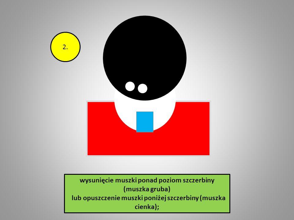 1. wysunięcie muszki ponad poziom szczerbiny (muszka gruba) lub opuszczenie muszki poniżej szczerbiny (muszka cienka);