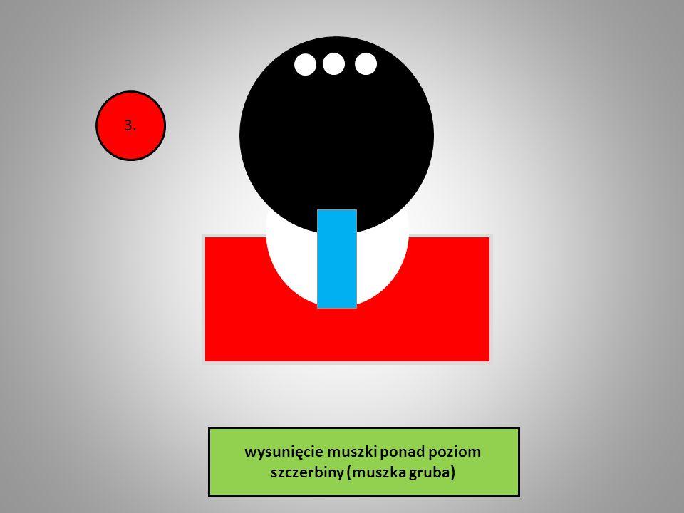 wysunięcie muszki ponad poziom szczerbiny (muszka gruba) 2.