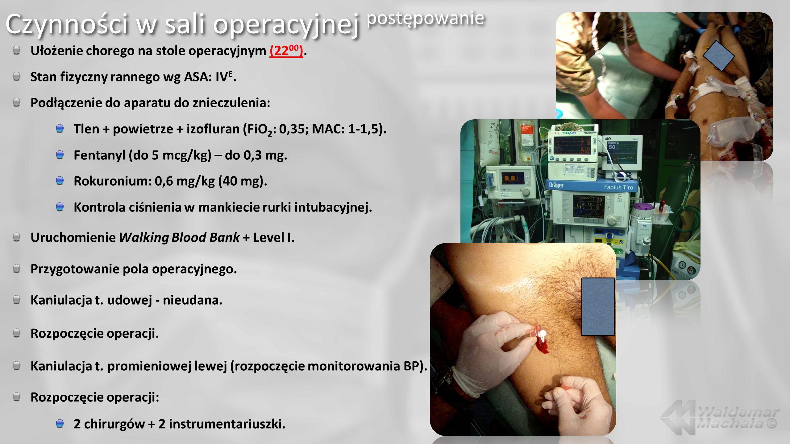 Ułożenie chorego na stole operacyjnym (22 00 ). Stan fizyczny rannego wg ASA: IV E. Podłączenie do aparatu do znieczulenia: Tlen + powietrze + izoflur