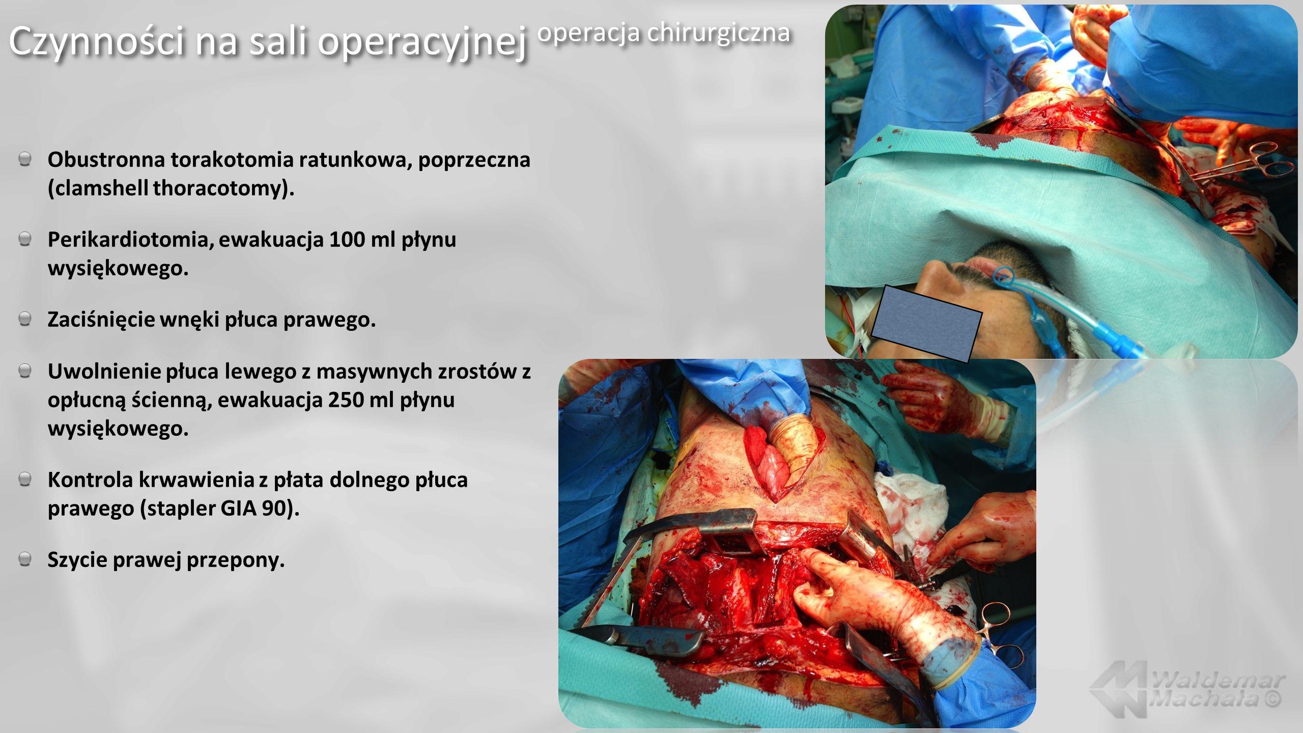 Obustronna torakotomia ratunkowa, poprzeczna (clamshell thoracotomy). Perikardiotomia, ewakuacja 100 ml płynu wysiękowego. Zaciśnięcie wnęki płuca pra